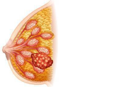 乳癌手術是治療局部腫瘤最重要的方式,手術過程能確定腫瘤型態與病理診斷,據此考慮後...