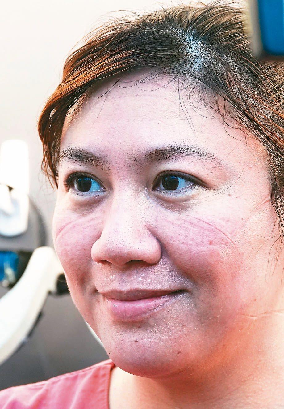 醫護人員卸下裝備,臉上還會留下「美麗的勒痕」。 記者鄭超文/攝影