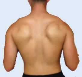 澄清醫院中港院區神經內科醫師鄧浩文指出,從事重訓、健身、各種需要反覆大幅度擺動上臂的運動員、或者需要長期肩臂負重的人,若有發現上臂舉不高合併推牆時背上會有「翅膀」跑出來的情形時,需儘早就醫。圖/澄清醫院中港院區提供