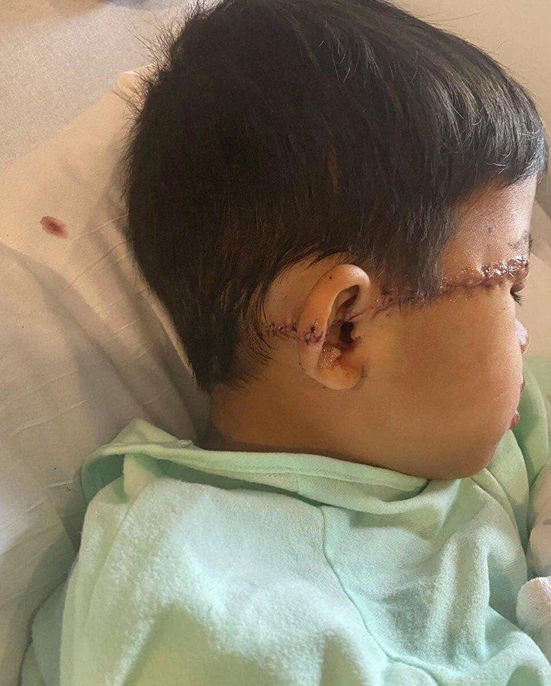 兒子的傷口從額頭橫跨至耳朵及耳背,又長又深的疤痕清晰可見。(Twitter圖片)