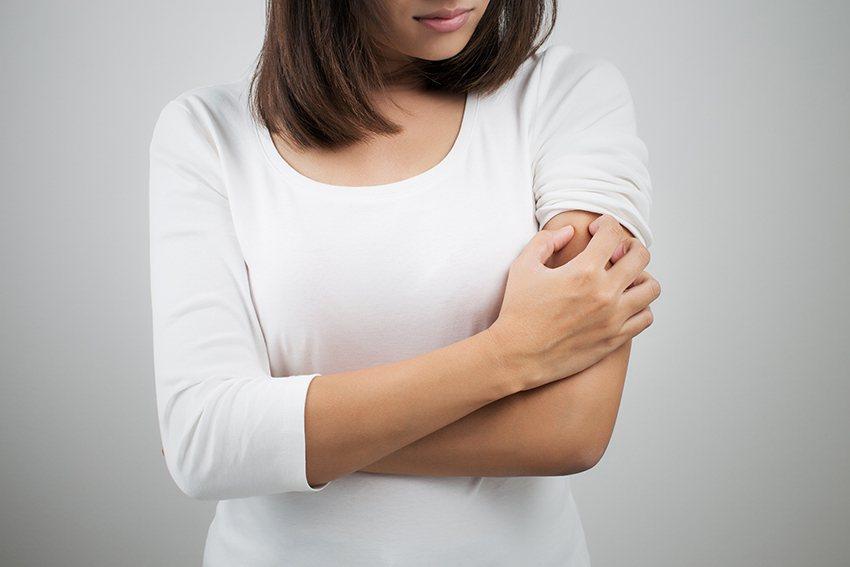 蕁麻疹病情來去如風,常使患者措手不及。 凱格蘭/提供