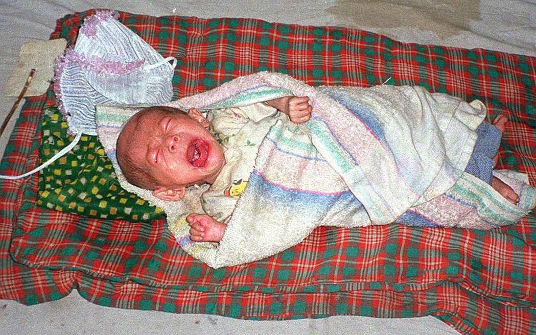 「我也想要活下去...」示意圖,圖為北韓一名嚴重營養不良孩童。 圖/美聯社