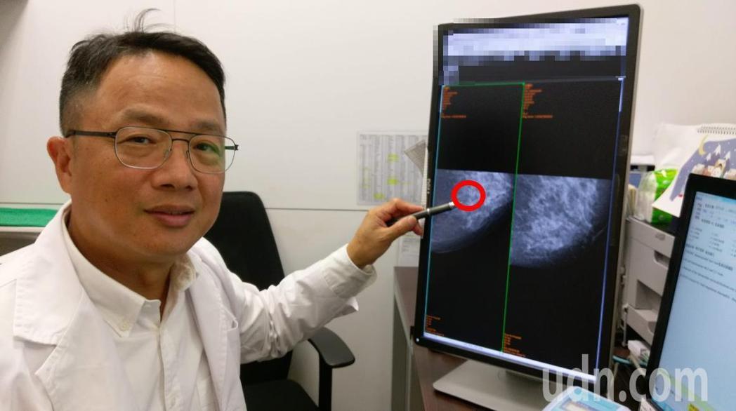 長安醫院乳房外科醫師吳嘉隆提醒,根據統計,乳癌原位癌早期診斷、早期治療,幾乎10...