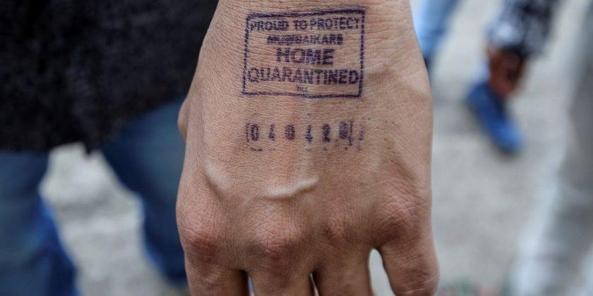 印度在需居家隔離者的手背上,用不褪色墨水蓋上「居家隔離」的印章。   路透