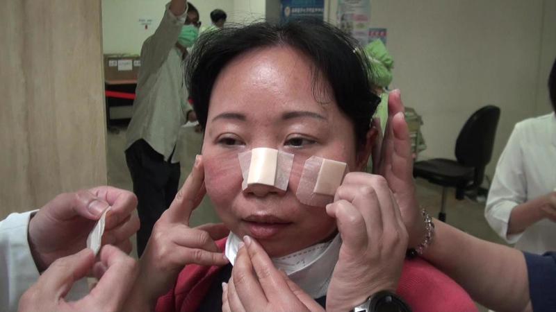 急診護理師臉龐滿都是口罩壓痕,以佛心業者捐贈的敷料,搶救肌膚。記者王昭月/攝影