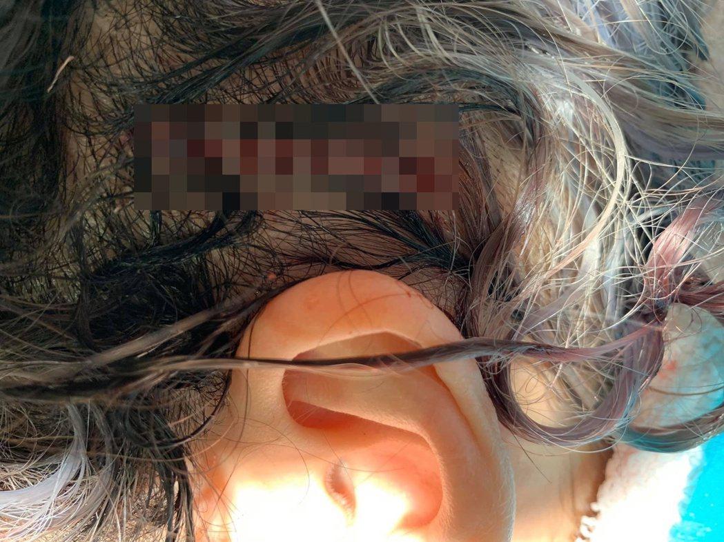 蕭亞軒自揭去年10月頭部撕裂傷照,讓人看了怵目驚心。圖/摘自臉書