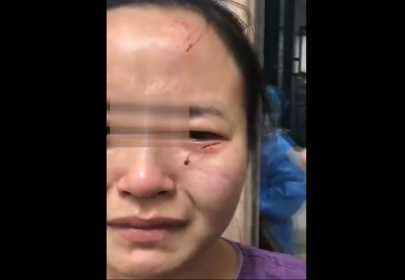中國這位王姓護士遭外籍確診患者咬傷,臉部有多處瘀青和咬痕。圖擷自Daily News