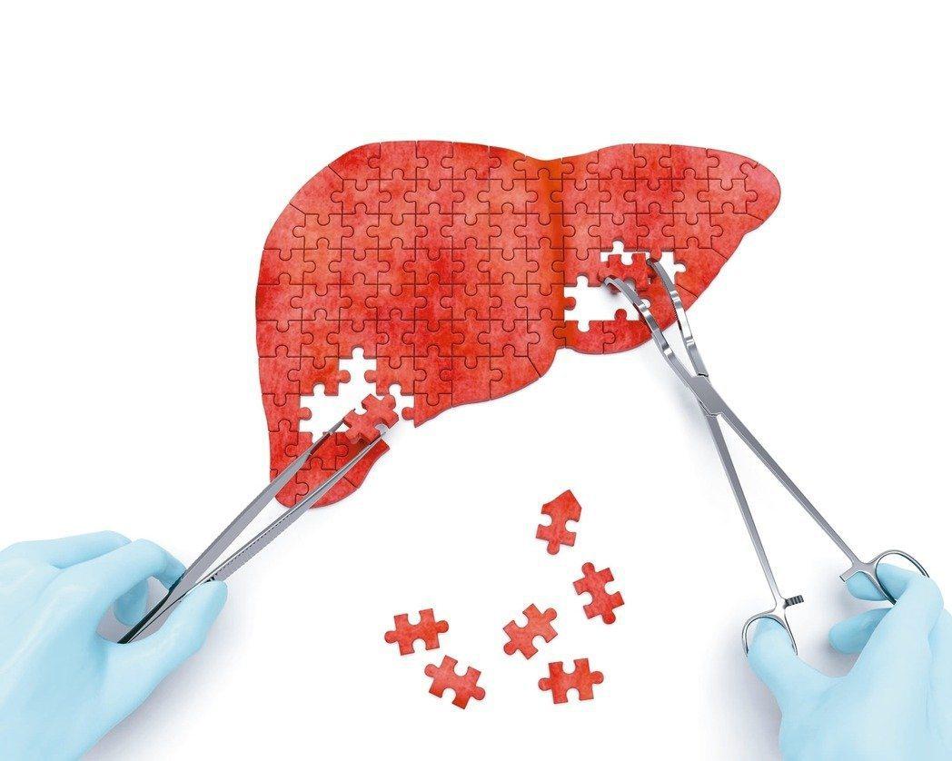 圖/123RF  90%的肝炎都沒有症狀,有些初期肝硬化及肝癌病患除沒有症狀外、...