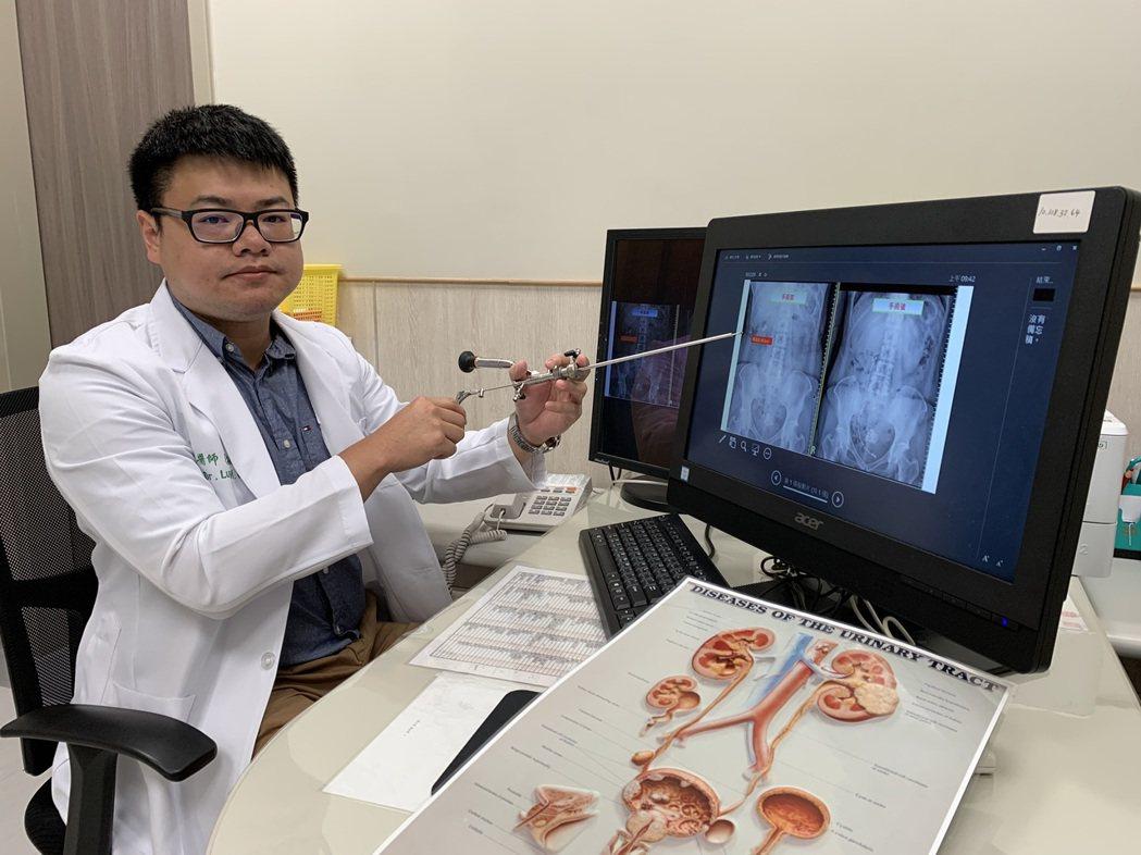 中國醫藥大學新竹附設醫院泌尿科醫師羅敏誠表示,腎臟結石多半沒有症狀,結石一旦掉到...