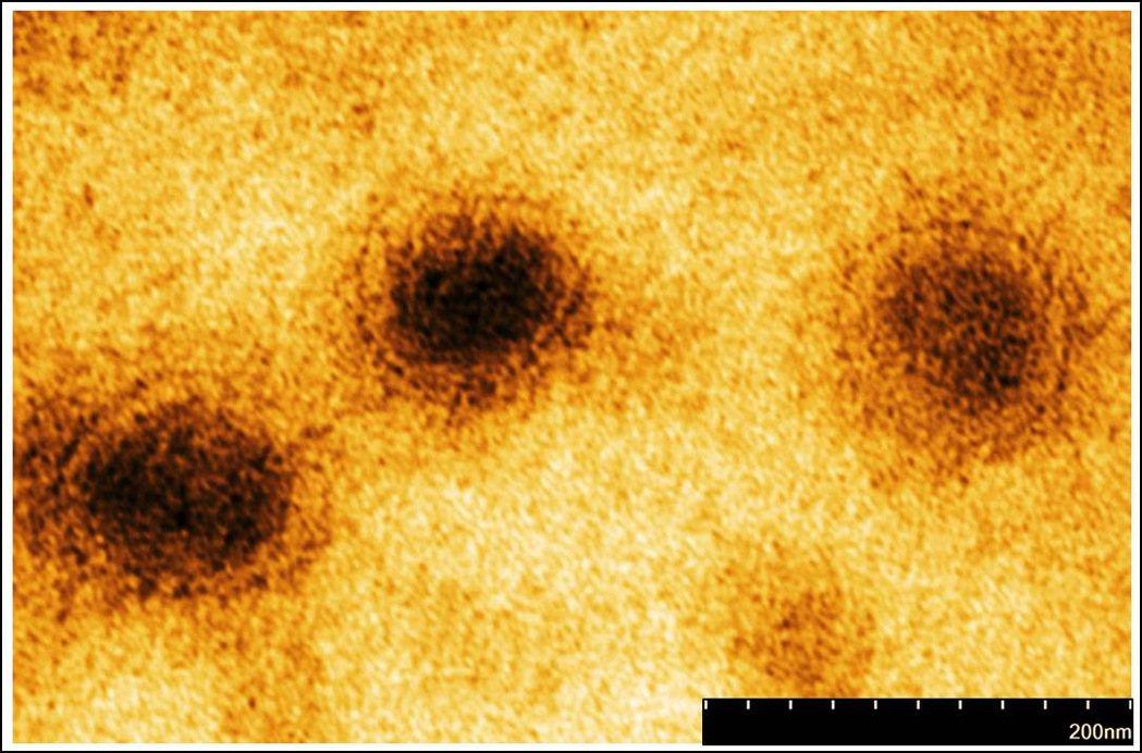 長庚與國防醫學院預防醫學研究所合作電子顯微鏡下的新冠病毒影像。圖/長庚醫院提供
