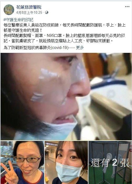 花蓮慈濟醫院在臉書貼出醫護人員因長期戴口罩,臉有壓痕貼人工皮、矽膠貼緩衝的照片 ...