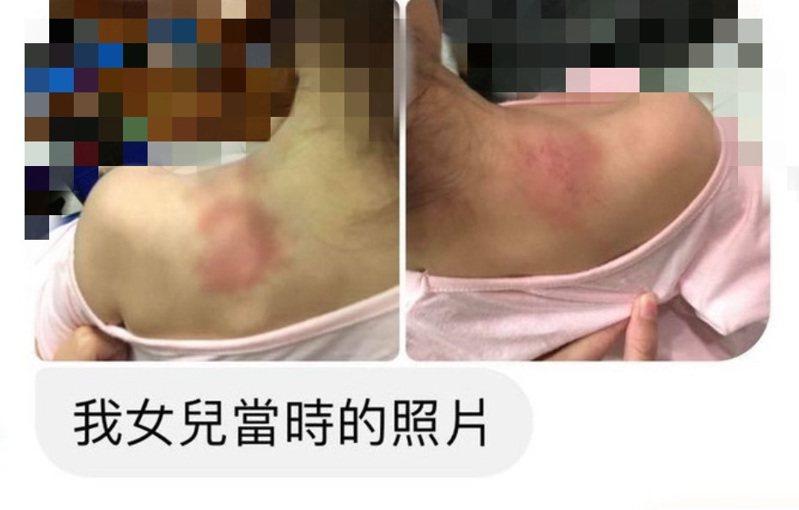 台南市永康區一家托嬰中心的托育人員被爆不當照顧,造成男嬰頭腳多處瘀青,有家長昨天爆料該員過去在其他家幼兒園任職時,女兒也曾被她不當管教,導致肩膀多處瘀傷。記者鄭維真/翻攝
