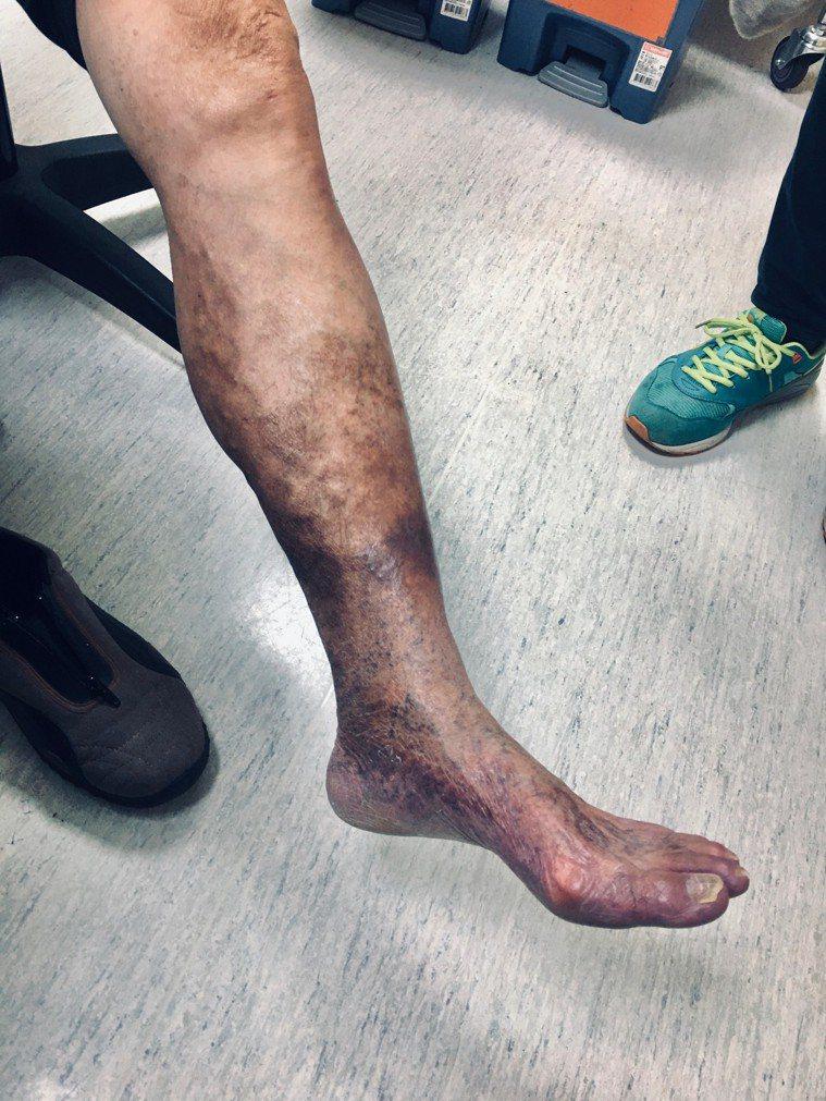第四級皮膚變色治療前。圖/大千醫院提供