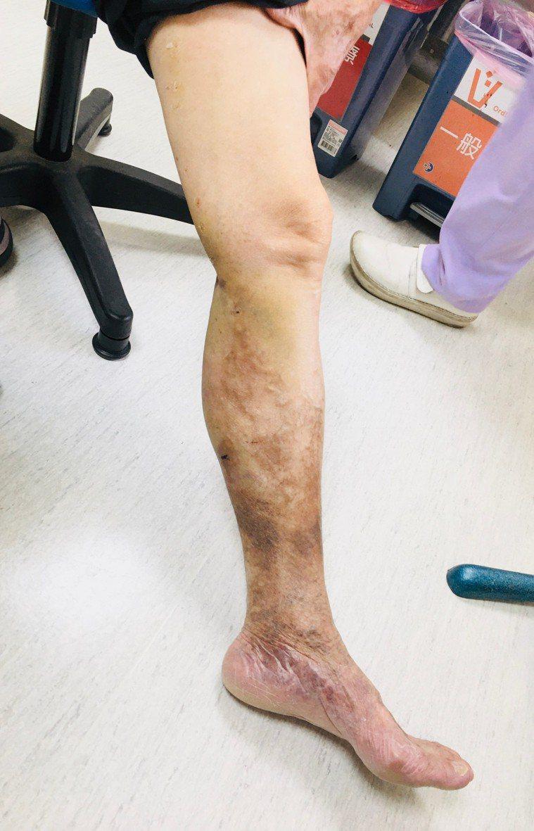第四級皮膚變色治療後。圖/大千醫院提供