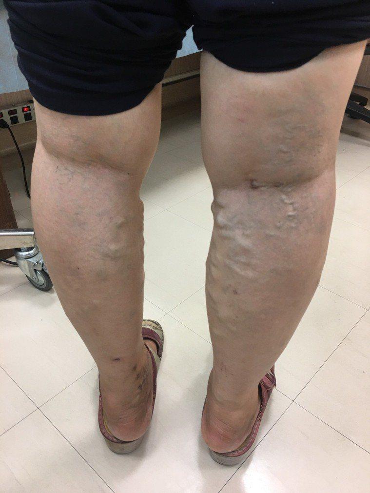 第三級血管突起水腫治療前的情況。圖/大千醫院提供