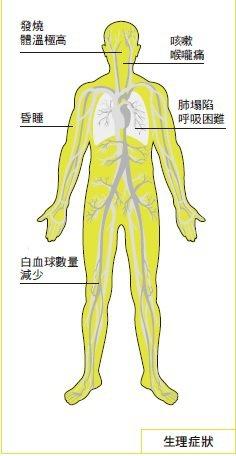 SARS症狀和影響。