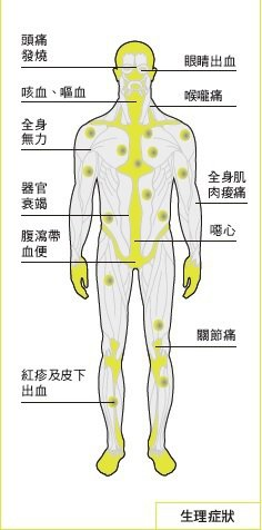 伊波拉症狀和影響。