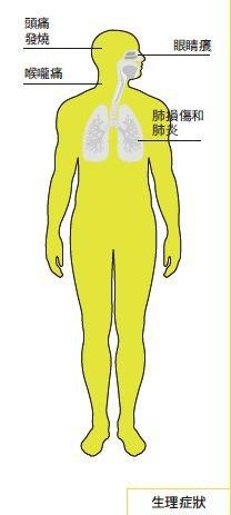 H5N1症狀和影響。