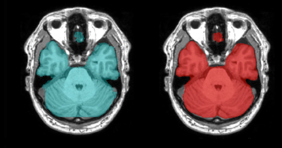 大腦分割影像比較,左為人工分割,右為 AI 分割。 SNAC /提供
