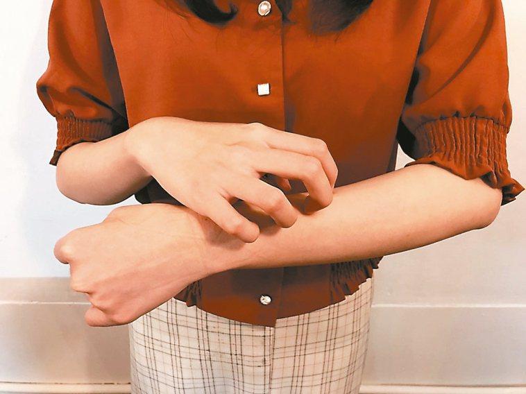 皮膚癢症狀好發於3、4月季節交替時,反覆搔抓恐造成續發性的皮膚損傷。 記者吳亮賢...