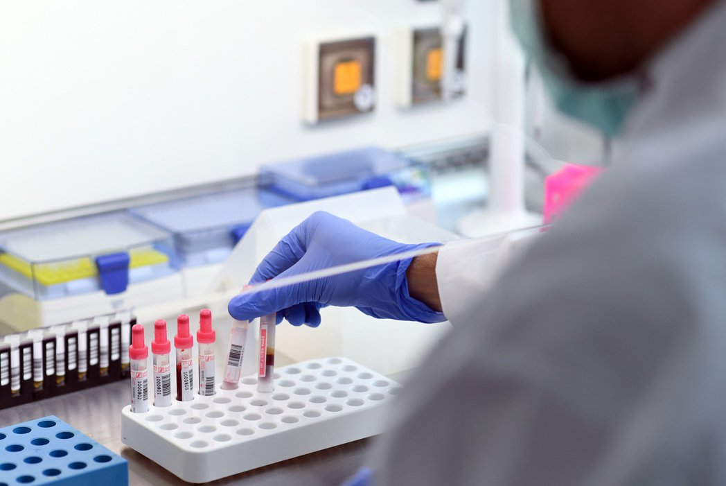 世衛組織說,沒有證據顯示冠狀病毒可以預防第二次感染。圖為血液樣本示意圖。路透