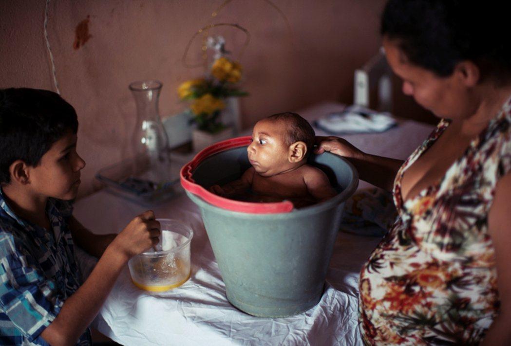 茲卡病毒巴西的疫情慘重,超過4,000名以上新生兒出現小頭畸形的症狀,被認為和茲...
