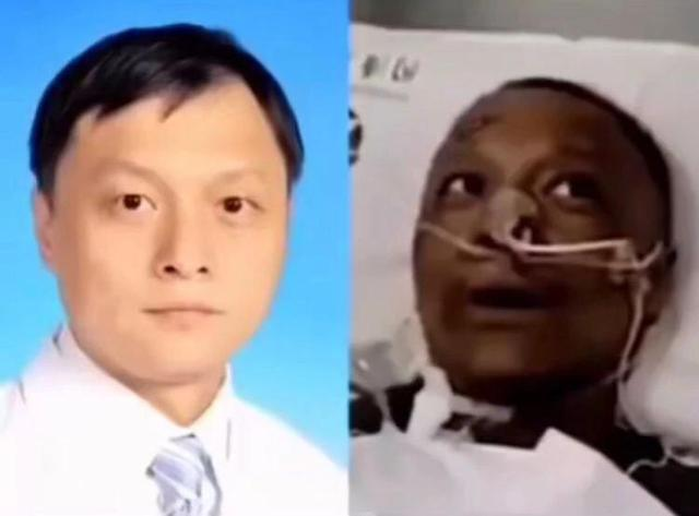 武漢市中心醫院醫生易凡感染新冠病毒後容貌判若兩人,但經過兩個月治療,易凡目前已經...