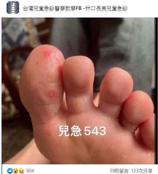 COVID腳趾 圖片截自臉書社團《台灣兒童急診醫學教學FB -林口長庚兒童急診》
