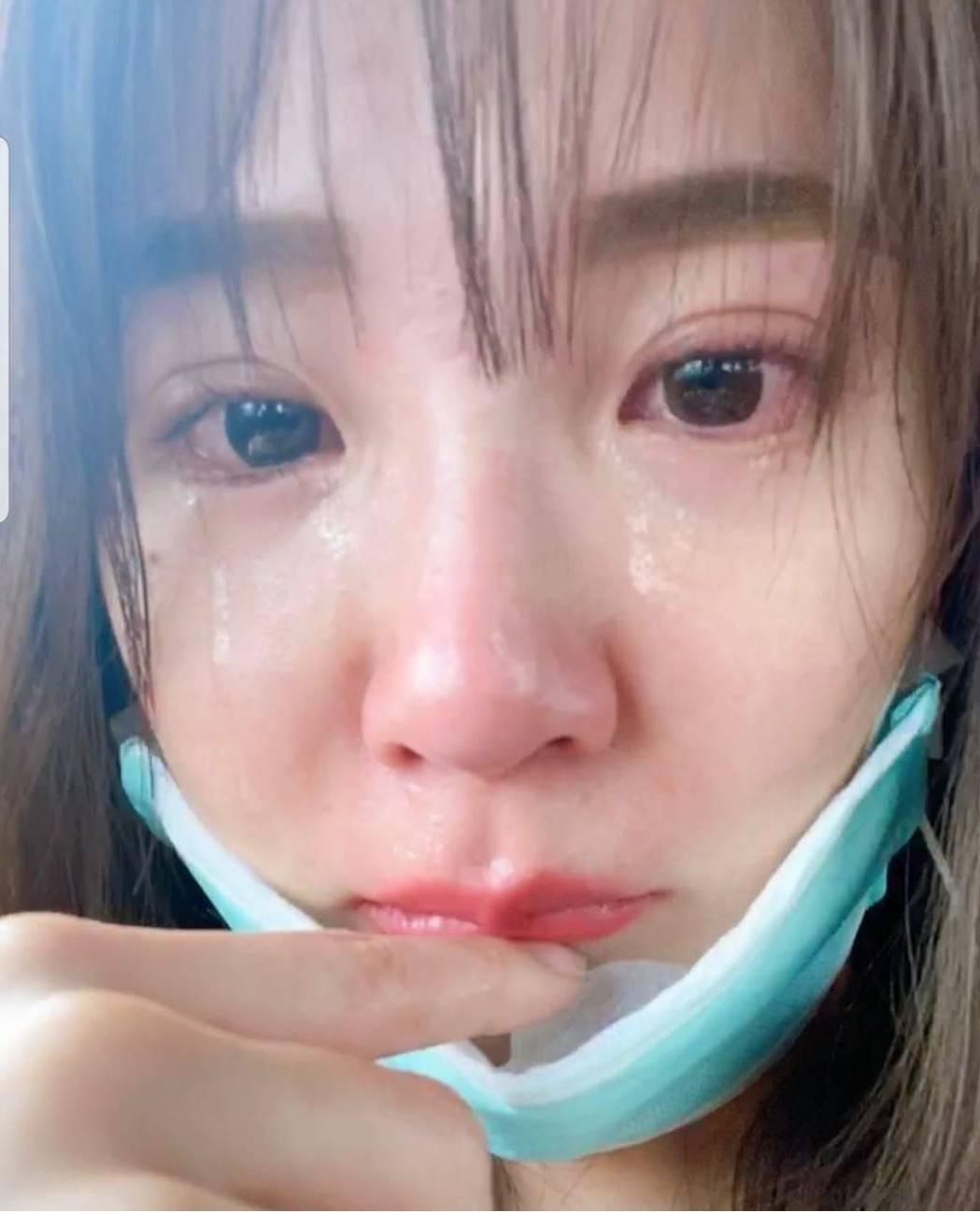 郭書瑤突然PO出哭腫眼的照片。圖/截圖自IG