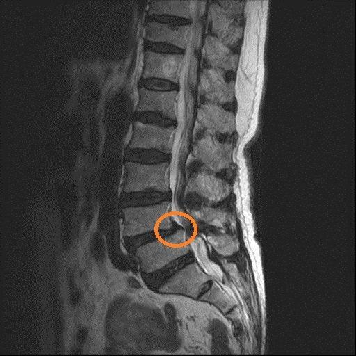 超高齡阿媽因脊椎滑脫造成的神經壓迫,出現嚴重腰痛,痛到沒法走路。圖/活力得中山脊椎外科醫院提供