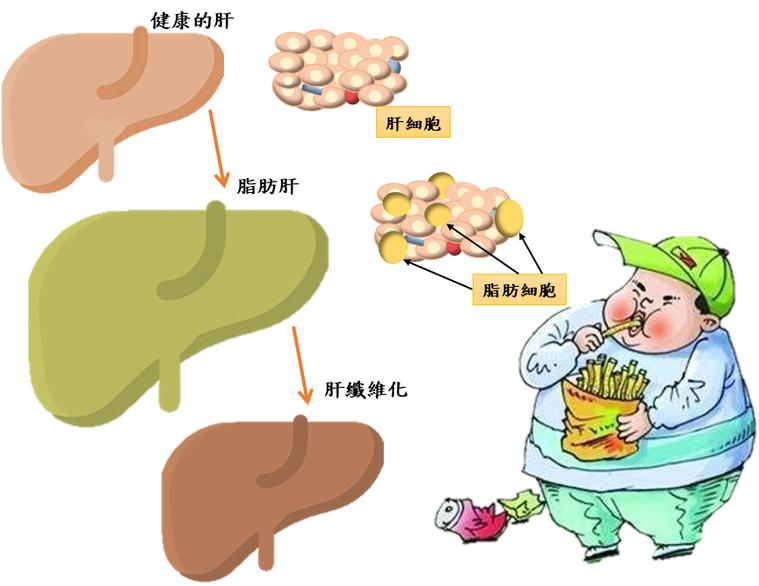 肥胖會造成身體許多器官出現疾病,脂肪肝在兒童時期就可能會發病。 圖/亞東醫院提供