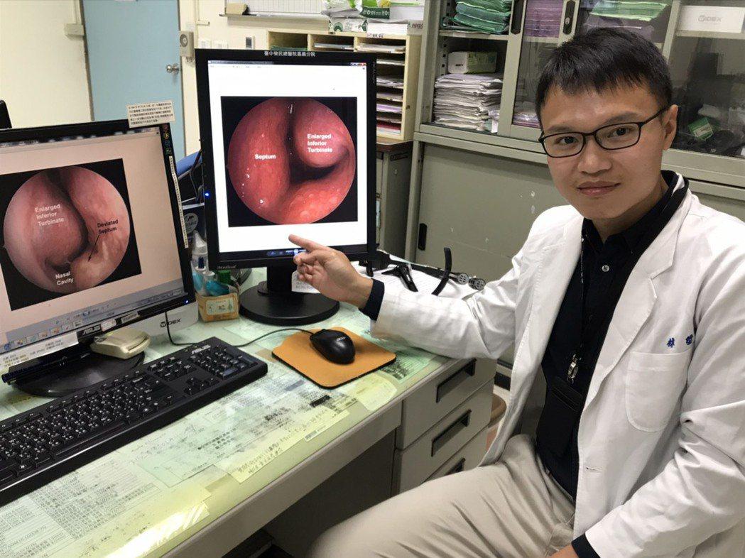 林陞樵指出,過敏性鼻炎病因多來自天氣溫差、過敏物質等,若藥物無法緩解,可採微創手...