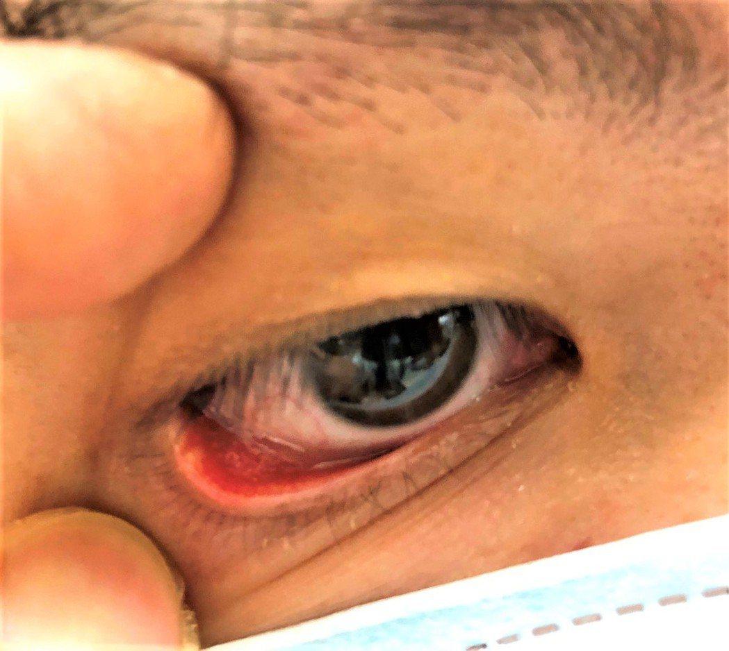 針眼是常見的眼皮腺體炎症,發作起來有時惱人,許多人卻不知如何才能有效消腫。圖/書...