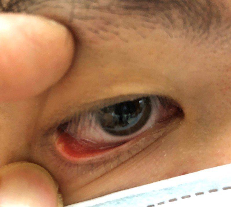 針眼千萬別輕易採取熱敷或是冰敷,應交由醫師判斷屬於針眼的急性期還是慢性期,決定該用哪一種方式紓緩症狀。圖/書田診所提供