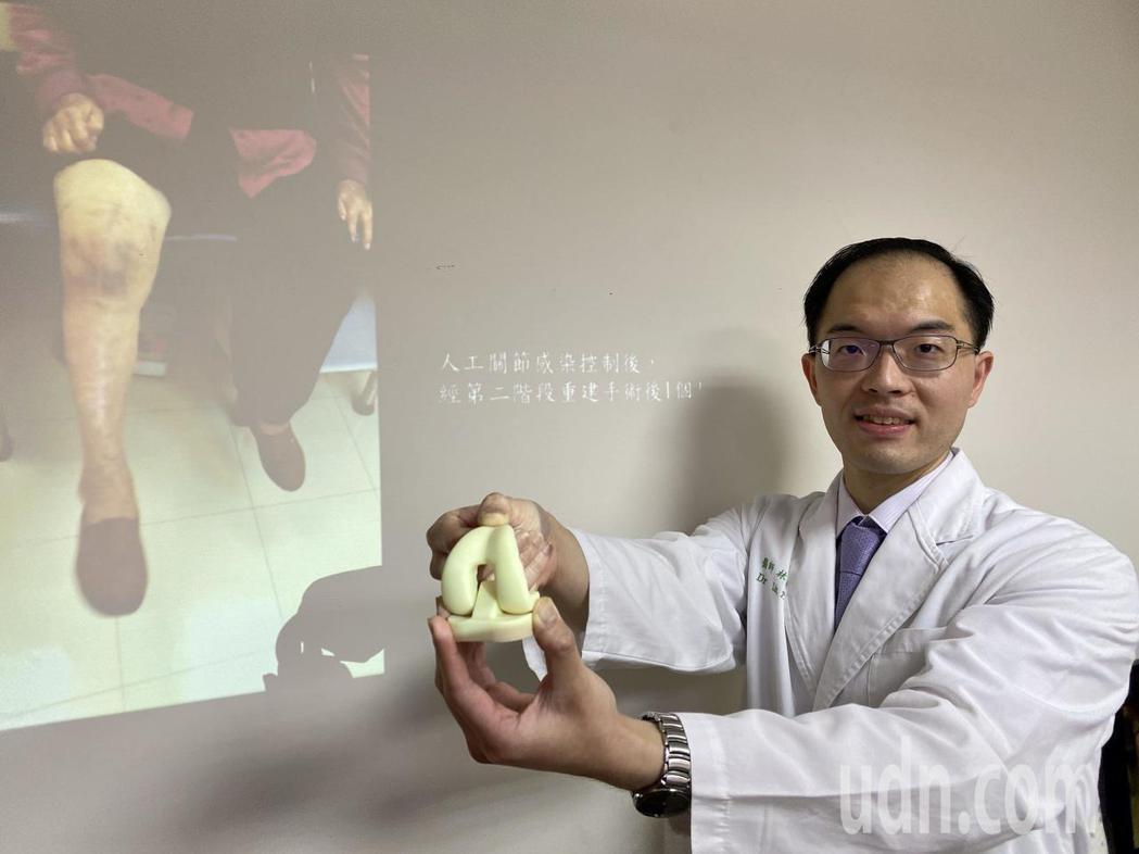 醫師林宗立說明,以3D列印模具製造含抗生素活動型骨水泥治療,有效幫助患者控制感染...