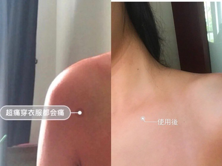 曬傷後的肌膚,使用幾天的蘆薈膠後,很快就退去熱、紅、癢的狀況。圖/摘自小紅書