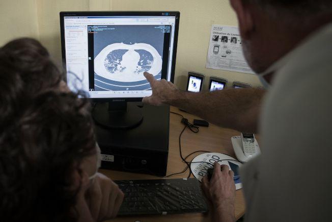 圖為醫務人員在電腦螢幕上顯示染新冠肺炎患者肺部X光片。 圖/世界日報