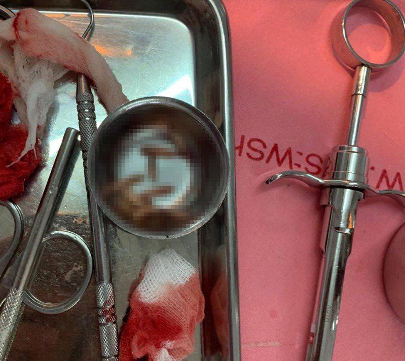 泰國一名70多歲老翁日前發高燒和牙齦腫痛,想不到牙醫竟在他的牙齦上發現一個大洞,更在裡面拉出12條白蛆。圖/翻攝自Thanatnon Rong Assava FB