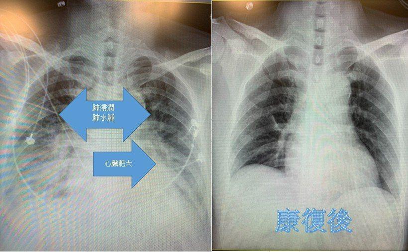 該男就醫前後差異。圖/中國醫藥大學新竹附設醫院提供