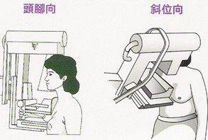 圖一、乳房X光攝影檢查是用透明壓克力板固定並夾住乳房。