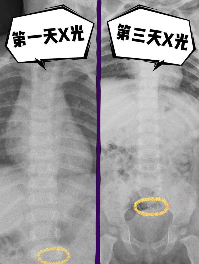1歲男童誤食釘書針嚴重咳嗽,求醫5天後順利排出。圖/為恭醫院提供