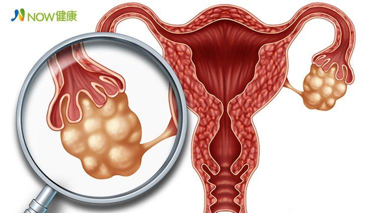 ▲卵巢癌無明顯症狀不易發現,高危險族群可在30歲每半年至1年安排定期檢查。(圖/...