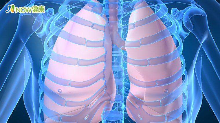 ▲肺癌為女性國人頭號殺手,建議婦女朋友在40歲往後每2年1次的全身健康檢查。(圖...