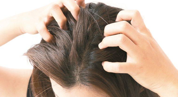 曾德朋指出,「頭臭的大部分原因,是頭部清潔沒做好。」 圖/123RF