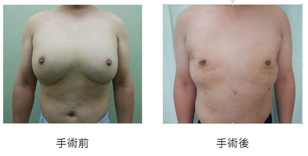 小沈7年來自打3公升沙拉油豐胸,由彰基以 「3D內視鏡乳房手術」,將彌勒佛大叔胸...