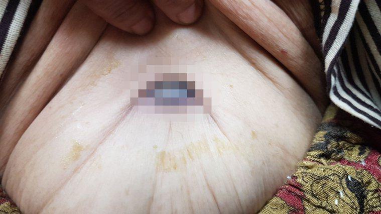 75歲老婦肚臍長出「瑪麗修女結節」圖/許秉毅提供