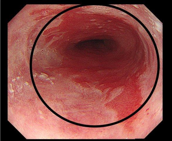 食道腺癌之癌前病變,巴瑞特食道合併食道分化不良。圖/花蓮慈濟醫院提供