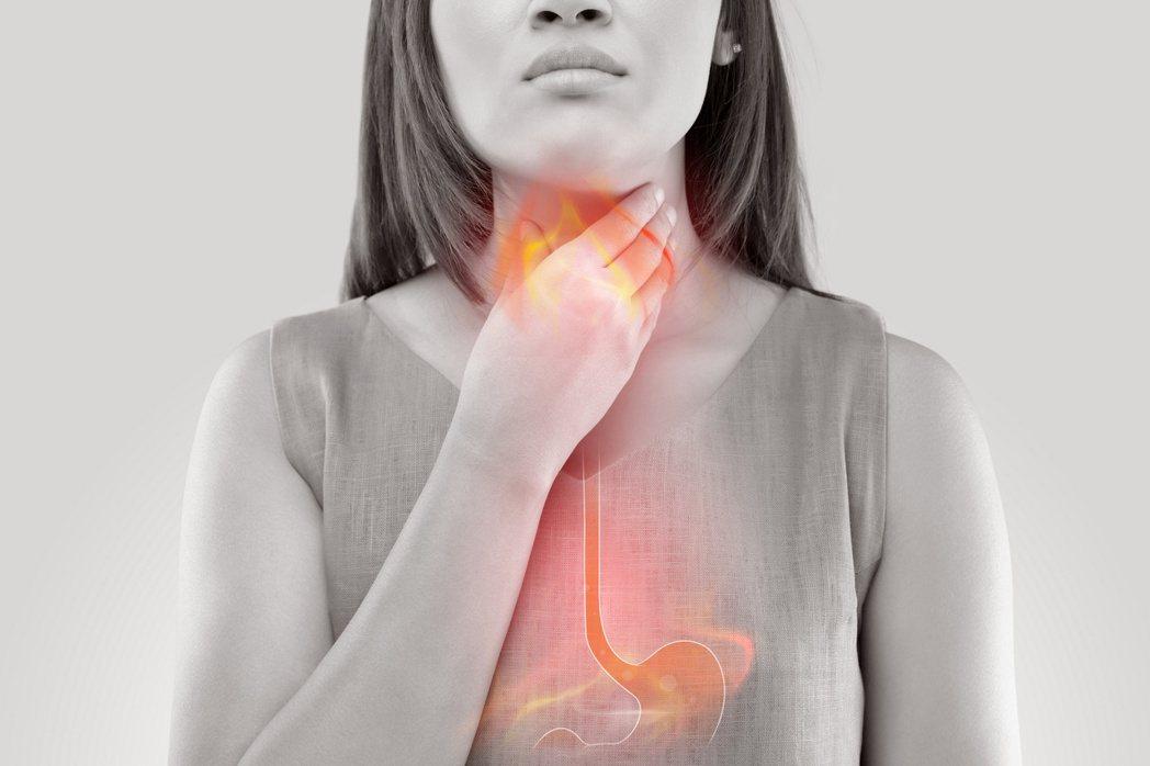 食道在胃酸長期刺激下,有可能出現異常黏膜組織「巴瑞特氏食道」(Barrett's...