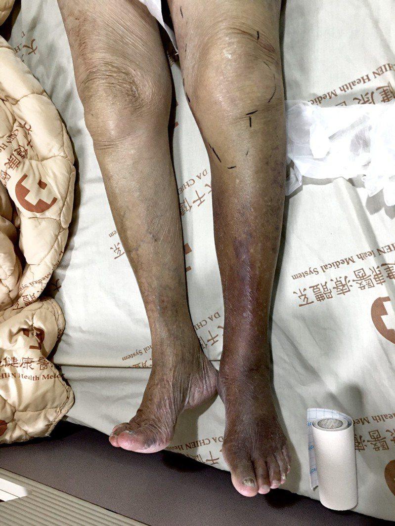 老婦治療前,左腳發黑且有截肢的風險。圖/大千醫院提供