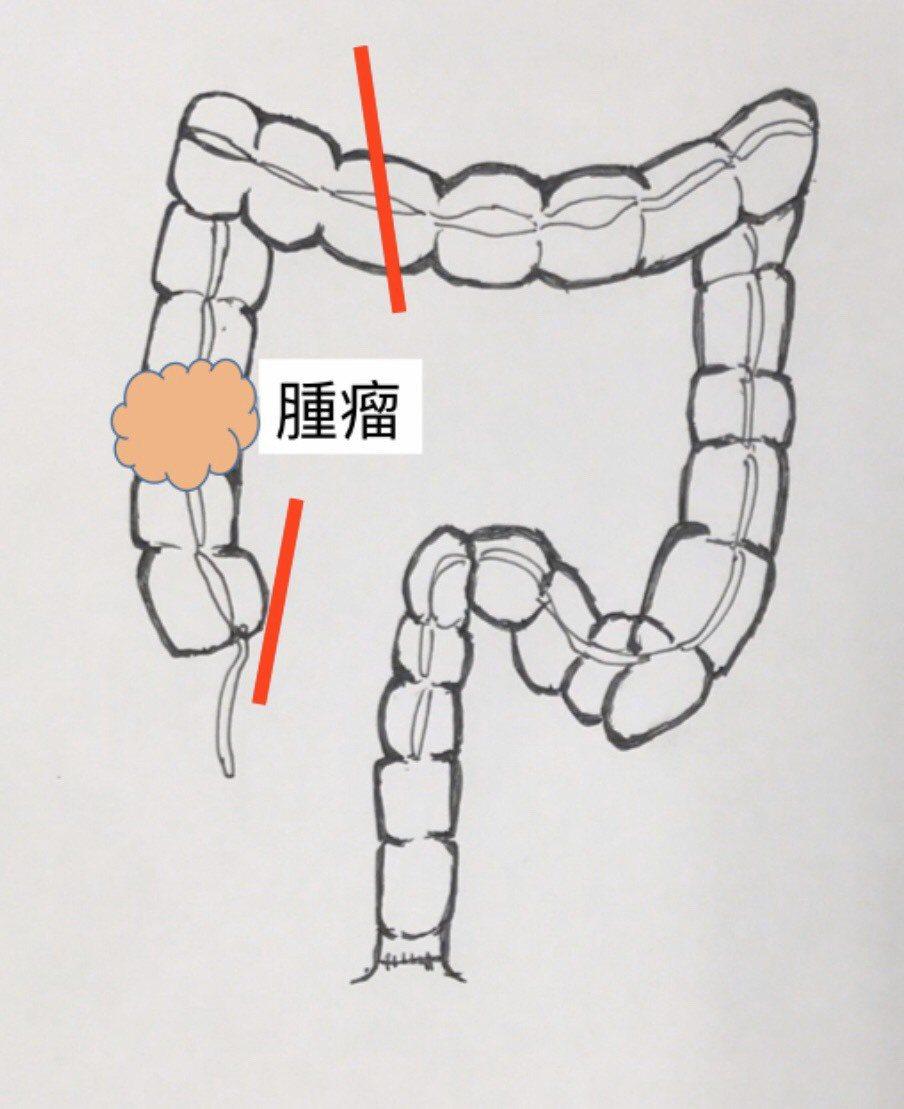 一名男子上腹痛長達兩個月,到中國醫藥大學新竹附設醫院急診室求助,經電腦斷層確診為...